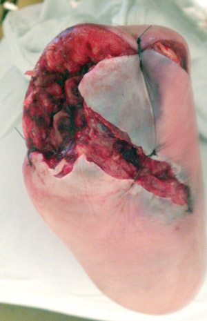 Figure 3. This diabetic man, aged 79 years, with severe PAD had an open midfoot amputation for gas gangrene but went on to below knee amputation.