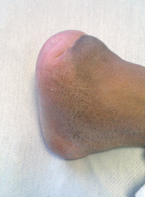 ure 1. Healed Chopart amputa- tion in a diabetic male patient aged 47 years with no evidence of PAD.