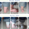 Orthotic success stories: Four cases in a series