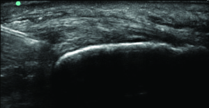 Figure 2b. Needle tip at the intrasubstance tear.