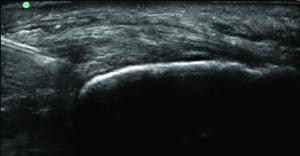 Figure 2b. Needle tip at the intrasubstance tear.