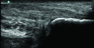 Figure 2c. Achilles tendon, three months after PRP procedure, with healed midsub- stance tear.
