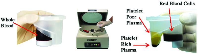 Figure 3. Platelet-rich plasma preparation