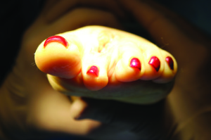 Figure 10: Proper position of the toe after osteotomy fixated and sutures secured dorsally.