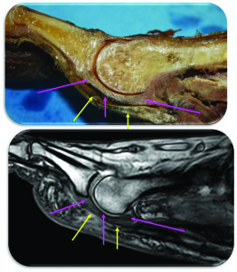 Figure 2: Cadaveric cross section with corresponding sagittal MRI demonstrating the plantar plate (pink arrows) and association with flexor tendons (yellow arrows).