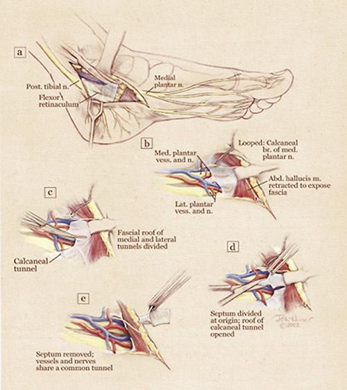 Figure 1. Illustrations depicting Dellon's nerve decompression technique. (Reprinted with permission from Dellon.com)