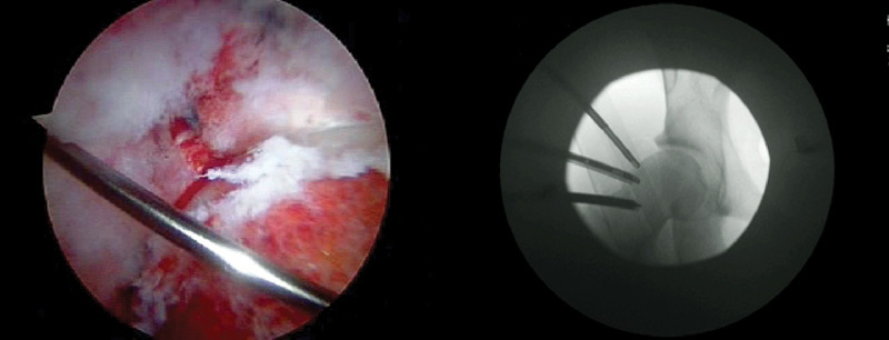 Figure 3. Intraoperative picture (left) and fluoroscopic image (right) of patient with treatment of cam-type FAI.