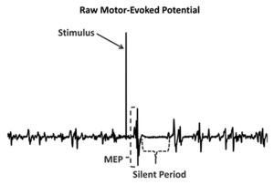Figure 1. Electromyographic recording from single transcranial magnetic stimulation pulse. MEP = motor evoked potential. (Reprinted with permission from reference 18.)