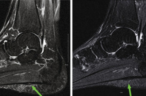 Magnetic resonance images depict a partial tear of the plantar fascia before (left) and after (right) treatment with PRP. (Images courtesy of John J. Wilson, MD, MS.)