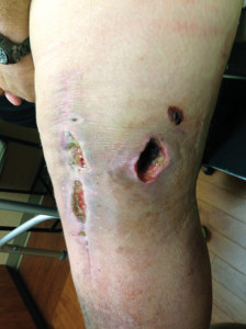 Figure 1. A wound healing complication in an obese total knee replacement patient.