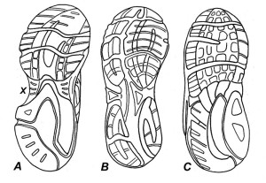 Figure 8. Bottom view of the three basic types of running shoes. Cushion running shoes (A) are made for individuals with high arches. They are slightly curved to match the shape of the typical high-arched foot and possess flexible midsoles with signif- icantly less bulk in the midfoot region (X). The reduced midsole material in the mid- foot gives the shoe an hourglass appearance when viewed from below. Stability sneakers (B) are made for individuals with neutral foot types. They are straighter and have slightly more midsole material reinforced beneath the arch. In contrast, motion control sneakers (C) are straight and are strongly reinforced throughout the midfoot with extra-thick midsole material. Because of the additional midsole material, motion control sneakers are extremely stiff.