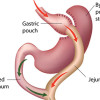 Bariatric surgery: Effects on patient gait and function