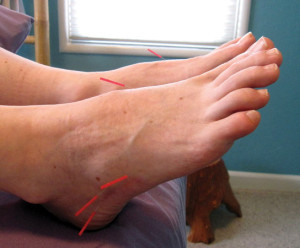 Several days after her first acupuncture treatment, the author's foot pain had decreased by about half.