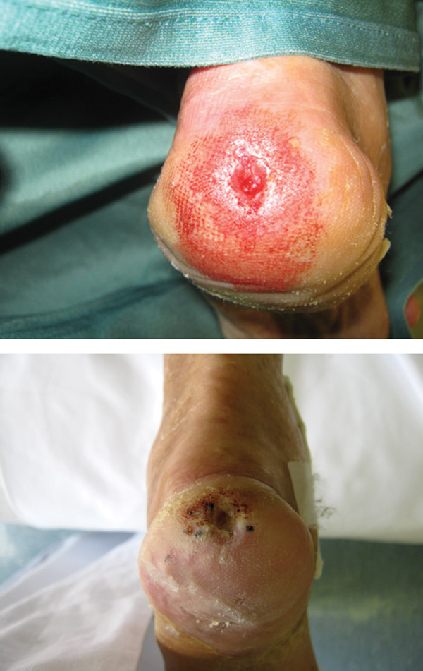 Chronic nonhealing lower limb ulcers with treated with autologous ADRCs before treatment (above) and 20 days after injection (below). (Images courtesy of Gerardo Marino, MD.)