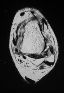 Figure 1. Rupture of the anterior talo-fibular ligament.
