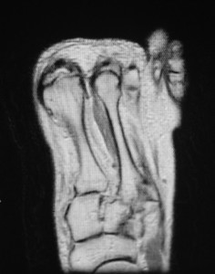 Figure 2. Magnetic resonance imaging can be beneficial in evaluating the diastasis and the Lisfranc ligament.