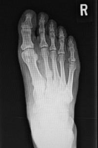 Figure 3. A stress fracture of the second metatarsal.