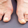 Foot ulceration in patients with rheumatoid arthritis