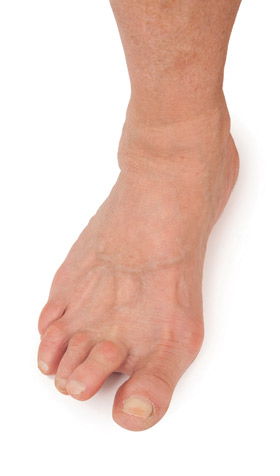 Foot Ulceration In Patients With Rheumatoid Arthritis Lower Extremity Review Magazine