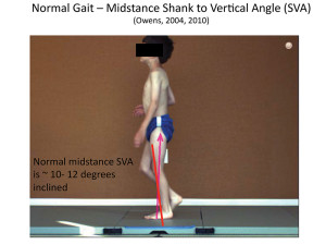 Tuning an AFO typically involves assessing and adjusting shank and thigh kinematics so that during stride the shank passes through vertical and reaches an incline (often estimated at 10°-12°) at midstance. (Image courtesy of Kristie Bjornson, PT, PhD.)