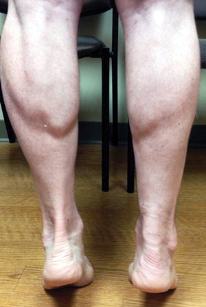 Figure 2. Patient performing double heel raise more than one year after right Achilles surgical repair. Note the slightly smaller but well-defined calf size. Note also the repaired Achilles tendon is thicker but functioning well with near equal heel elevation.