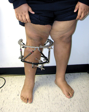An adolescent male patient with left-sided Blount dis- ease who continued to gain weight despite realign- ment of his leg. (Photo courtesy of Sanjeev Sabharwal, MD, MPH.)