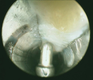 Endoscopic view of the plantar fascia as part of an endoscopic plantar fascia release. (Image courtesy of Daniel C. Farber, MD.)