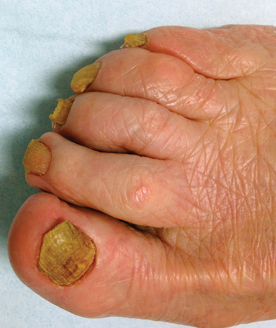 Onychomycosis remains a major clinical challenge | Lower Extremity ...