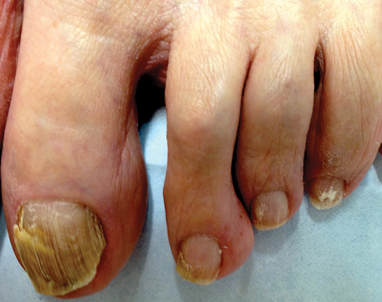 Onychomycosis Remains A Major Clinical Challenge