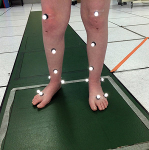 A 12-year-old girl with developmental delays has motion capture markers in place that will be used to collect 3D joint motion and force data to help determine the cause of her knee pain. (Photo courtesy of the John C. Wilson Motion Analysis Lab, Chil- dren's Orthopaedic Center, Los Angeles.)