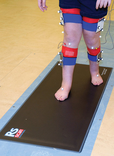 A patient at Gillette Children's Specialty Healthcare undergoes gait and motion analysis, which is also used to assess gait in children with cerebral palsy and knee pain. (Photo courtesy of the James R. Gage Center for Gait and Motion at Gillette Chil- dren's Specialty Healthcare in St. Paul, MN.)