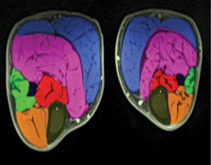 MRI images show the lower legs of a child with bi- lateral clubfoot. The smaller leg is the affected side, showing smaller muscles. (Image courtesy of Matthew Dobbs, MD.)