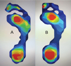 Figure 1. Plantar pressures of a chevron bunionectomy patient show a similar pattern before (A) and after (B) surgery. (Images courtesy of Christy King, DPM.)