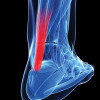Early weight bearing after Achilles tendon repair