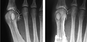 Figure 2. Observations of the metatarsal that help identify rotational position on AP radiograph include the lateral round sign of the first metatarsal head, the tibial sesamoid position, prominence of the medial eminence, lateral curvature of the metatarsal shaft, and lateral translocation of the proximal inferior first metatarsal tubercle.