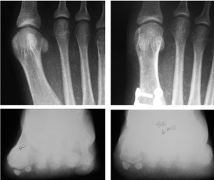 Figure 3. The image on the left is a preoperative AP radiograph. The image on the right is a six-month postoperative AP radiograph. Note the observable signs of ro- tational position at the first metatarsophalangeal joint, including the lateral round- ness of the metatarsal head, the tibial sesamoid position, the prominence of the medial eminence, the lateral curvature of the metatarsal shaft, and the abduction of the hallux. The corresponding sesamoid axial images are provided where clear alteration in rotational position is observed.