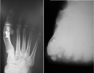 Figure 4. Commonly used metatarsal osteotomy procedures do not address the pri- mary level of the deformity, nor do they address the deformity in all three planes. This figure highlights the retained pronated position of the metatarsal and high resid- ual IMA following a distal metatarsal osteotomy.