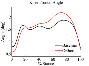 Figure 1. Knee frontal plane angle-time series for 31 recreational runners during running under baseline and orthotic conditions. (Adapted from reference 15.)