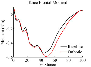 Figure 2. Knee frontal plane moment-time series for 31 recreational runners during running under baseline and orthotic conditions. (Adapted from reference 15.)