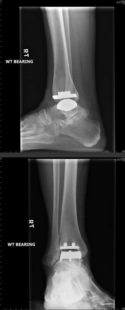 Figure 2. Radiographs show lateral and mortise views of a well-aligned, mobile-bearing total ankle replacement. There is evidence of bone ingrowth on the tibial component of the prosthesis. (Images courtesy of C. Thomas Haytmanek Jr, MD.)