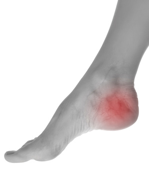 Foot Orthoses For Heel Pain Help Improve Walking Activity