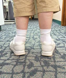 Photo of uncorrected patient, courtesy of Earthwalk Orthotics.