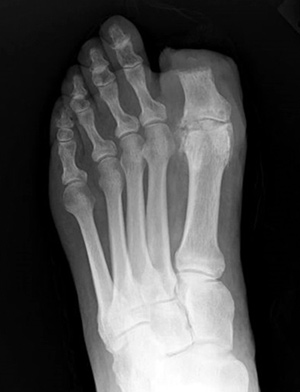 Partial hallux amputation in a patient with hallux rigidus. Image courtesy of Noah Oliver, DPM.