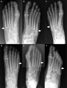 Figure 1. Stratification of fifth metatarsal fractures with fractures denoted by a white arrow. (A) Avulsion fracture of the base of the fifth metatarsal (zone 1; pseudo-Jones). (B) Jones (zone 2) fracture. (C) Zone 3 fracture of the base of the fifth metatarsal. (D) Dancer's fracture. (E) Transverse fifth metatarsal shaft fracture. (F) Stress fracture of the fifth metatarsal shaft. (Reprinted with permission from reference 8.)