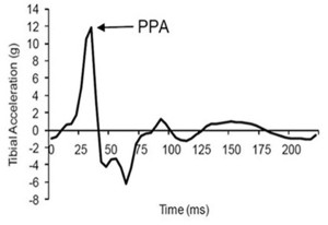 Figure 2. Peak positive acceleration (PPA), the highest acceleration measurement on a tibial acceleration curve during stance phase of running. (Reprinted with permission from reference 6.)