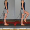Shoes, orthoses improve muscle activation onset in unstable ankles
