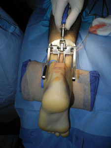 Some surgeons have found that a less-invasive approach, using Achilles repair devices such as the Percutaneous Achilles Re- pair System (PARS), helps to reduce complication rates. (Photo courtesy of David Richardson, MD).