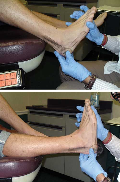 Figure 1. If the patient is able to achieve more ankle dorsiflexion with the knee flexed (top) than with the knee extended (bottom), an isolated gastrocnemius contracture is likely. If knee flexion does not significantly affect the degree of ankle dorsiflexion, then a gastroc-soleus complex equinus is likely.