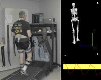 Participant-specific biofeedback during instrumented treadmill gait training. Examples of real-time biofeedback provided during gait training for correction of kinematic pat- terns. (Reprinted with permission from Segal NA, Glass NA, Teran-Yengle P, et al. In- tensive gait training for older adults with symptomatic knee osteoarthritis. Am J Phys Med Rehabil 2015;94[10 Suppl 1]:848-858.)