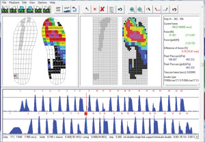 Figure 1. Novel Emed software interface. Steps are shown as pressure peaks in the lower panel (blue peaks). Sensor elements in the insole are represented by colored rectangles in the interface (upper left panel). Image courtesy of Novel.